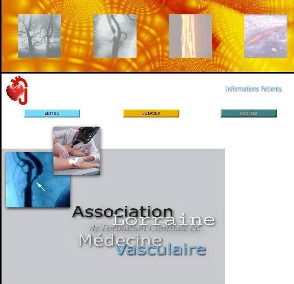 Association lorraine de médecine vasculaire