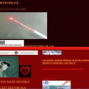 laser veineux