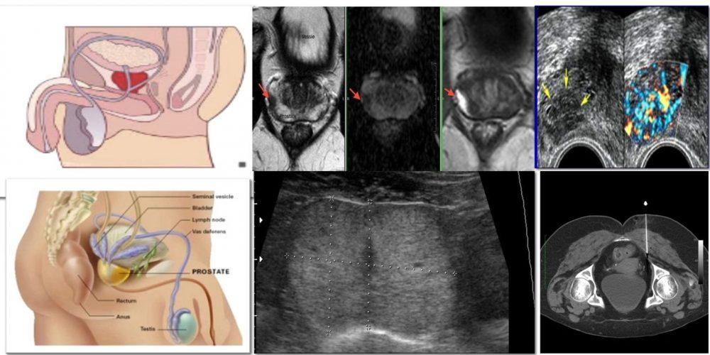 Cancer et adenome de la prostate : Les Lasers ou les ultrasons offrent des solutions