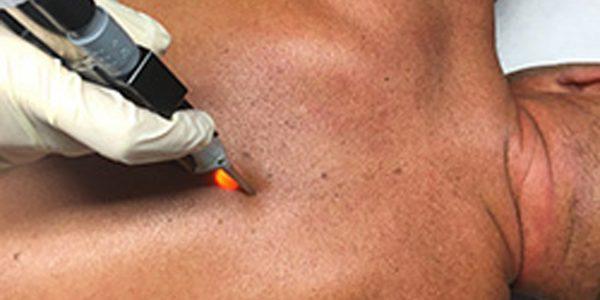 soin-epilation-laser-dos-homme1