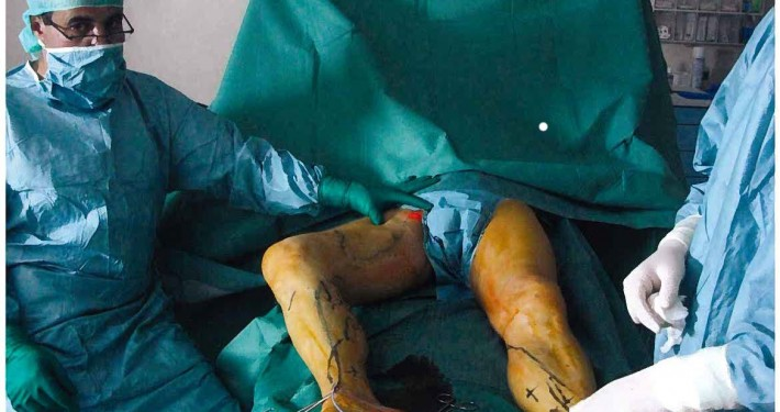 """Lasers médicaux, chirurgicaux et esthétique. Base encyclopédique des connaissances et d'informations. Documents grand public - Diplôme Inter-Universitaire """" Les lasers médicaux"""" ... se destinant à une activité de recherche ou de développement sur les lasers médicaux des Lasers Médicaux est une société scientifique qui a pour but de favoriser la diffusion des lasers en médecine.icaux, Il doit pouvoir également participer au sein des institutionnels à l'amélioration de la réglementation des conditions d'utilisation des lasers médicaux Laser, Radiofréquence et Vapeur pour traiter les varices, comment ça marche ? Laser veineux retrait fibre de la jambe Laser, Radiofréquence et Vapeur pour traiter les varices, comment ça marche Elle a de très bon résultats avec des taux de récidive à 5 ans estimés entre 5 et 10%. Le laser endoveineux se présente donc comme une technique Les techniques endo-veineuses et notamment le laser endoveineux représente une alternative prometteuse aux approches chirurgicales L'opération des varices a été révolutionnée par le laser endoveineux. Il permet une fermeture de la varice à 90% à 5 ans et sans cicatrices."""