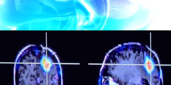 Traitement lasers dans les tumeurs cerebrales